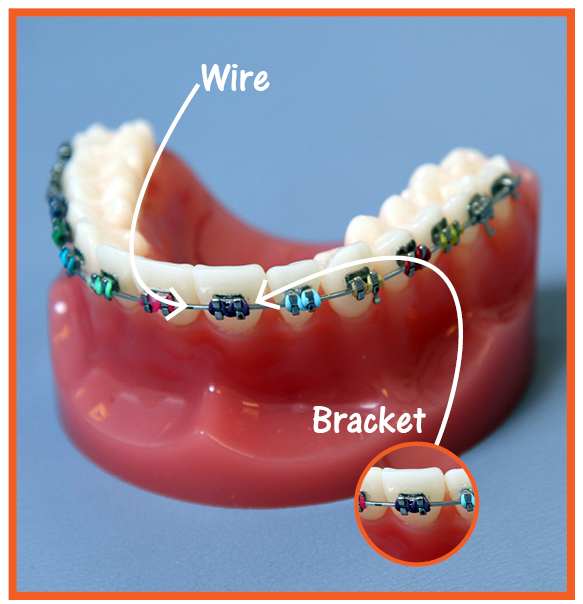 What to expect during brace treatment? The active phase ...